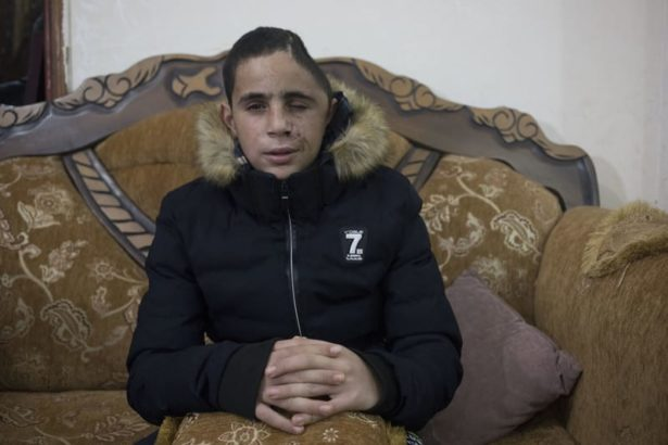 Israel arrests child with one-third of his skull missing, then lies about it