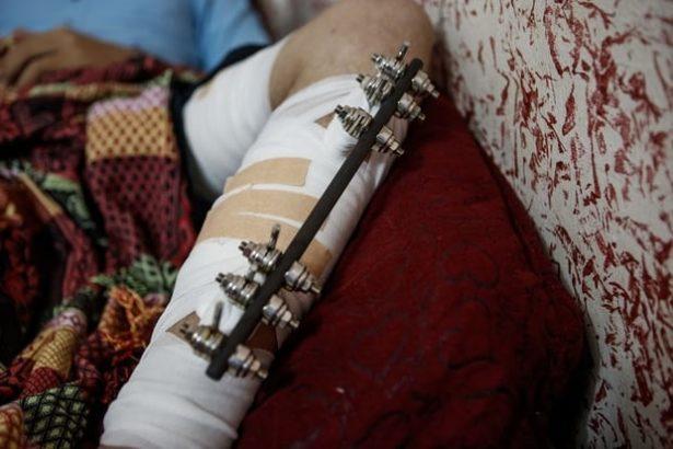 Shattered Limbs, Broken Dreams: Life for Gaza Athletes after Surviving Israeli Bullets