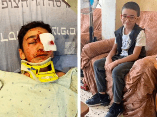 Palestinian child, shot in head by Israeli soldier, hemorrhaging in brain
