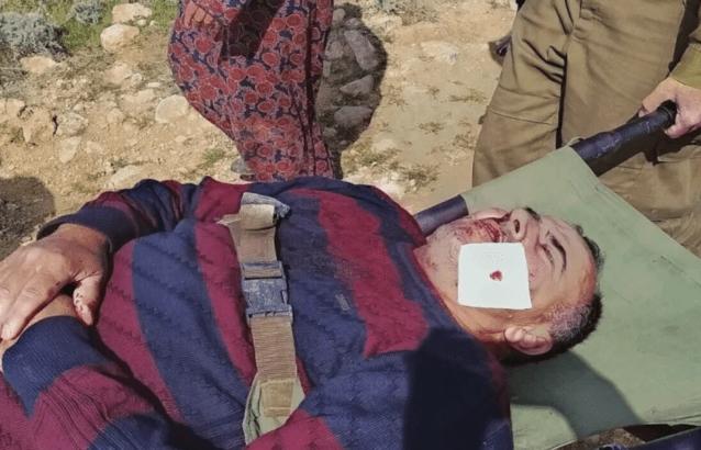 """Unprecedented escalation"" in Israeli settler attacks against Palestinians"
