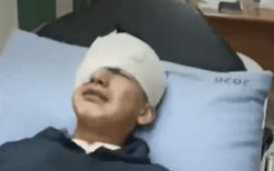 Izz al-Din Nidal al-Batsh, 14-year-old Palestinian, lies in the hospital after he was shot in the eye by Israeli forces.