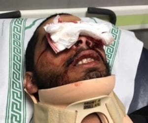 One of the men injured in the eye on Friday, May 6 by israeli military violence