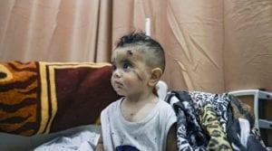 a gazan child with a head wound